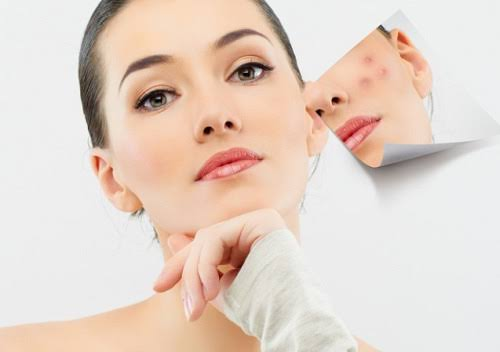 get rid of acne scars, how to remove pimple marks