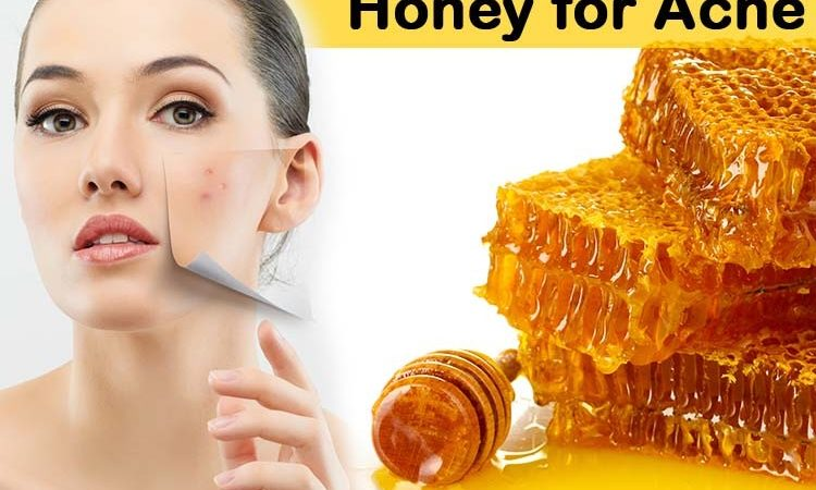 How to Use Honey for Acne?