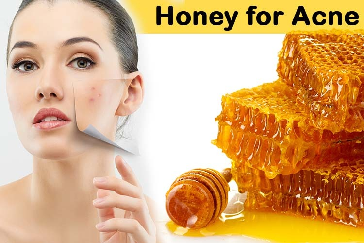 honey for acne, honey for pimples, honey for acne scars