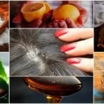 dandruff home remedies, dandruff cure, dandruff treatment