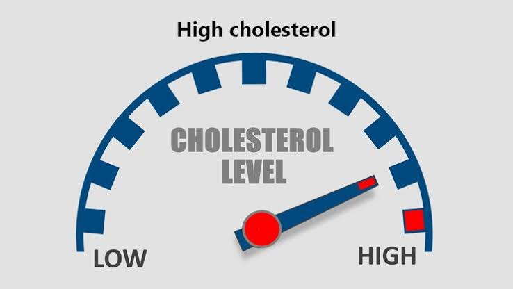 High Cholesterol, LDL cholesterol, HDL cholesterol, Triglycerides, Symptoms, Causes, risk factors, diagnosis, treatment, low-cholesterol diet, high-cholesterol foods, natural remedies, prevention