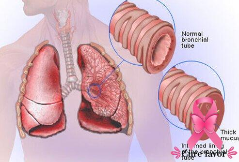 signs-of-pneumonia